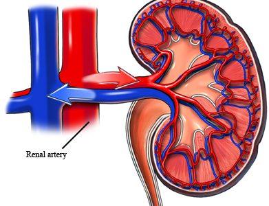 PGS. Tuyển chia sẻ về Tăng huyết áp (THA) và bệnh thận mạn tính (phần 1)
