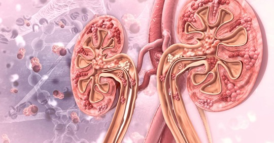 Gout Linked to Increased Risk for Chronic Kidney Disease