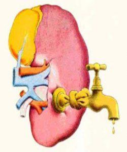Tăng huyết áp và bệnh thận mạn tính – phần 3: Tăng huyết áp gây biến chứng suy thận mạn