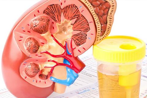 Bệnh thận và đái tháo đường: phần 10.5 – Điều trị lipid, acid uric máu và một số liệu pháp mới