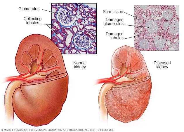 Bệnh thận và đái tháo đường: phần 2 – Cơ chế bệnh sinh